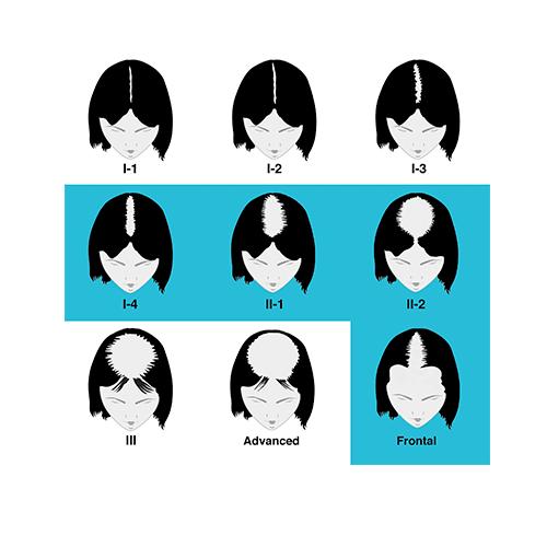 Ludwig-Savin Female Classification