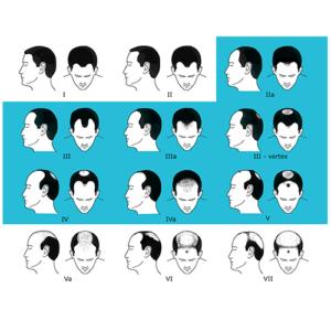 Norwood-Hamilton Male Classification