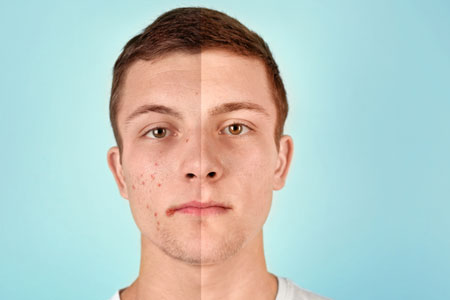 Split face boy with and without acne