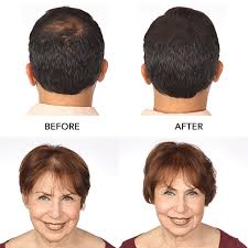 Before and after pictures of HairMax clients' hair