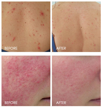 Best Red Light Therapy: Before and after red light therapy treatments